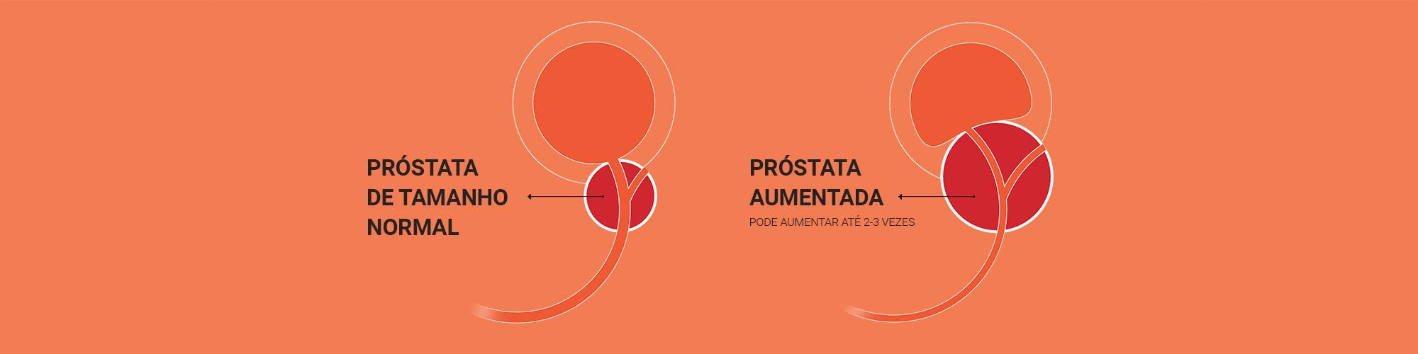 Aumento da próstata: quais os sintomas e como reconhecer